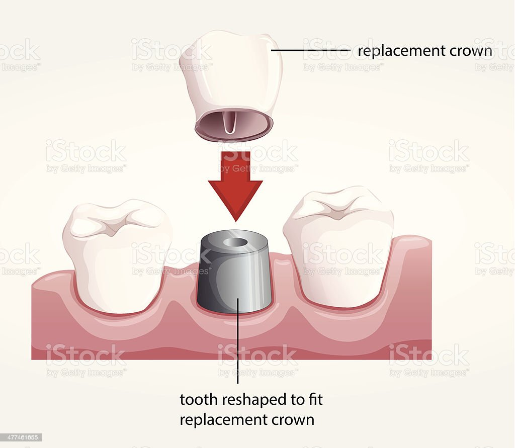 Dental crown procedure royalty-free dental crown procedure stock vector art & more images of abscess