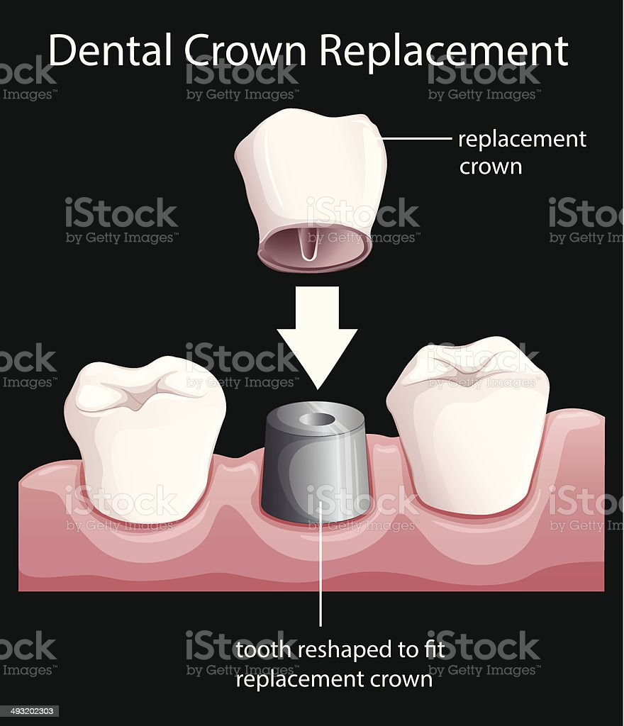 Dental crown replacement vector art illustration