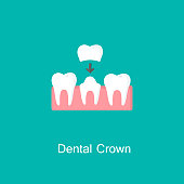 Dental crown, tooth treatment icon. Tooth prosthesis sign. Medicine symbol for info graphics, websites and print media. Vector flat icon.