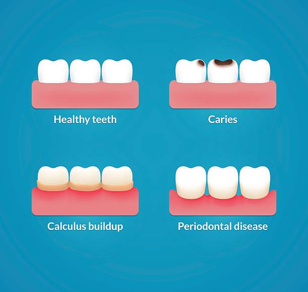 bildbanksillustrationer, clip art samt tecknat material och ikoner med dental health illustration - tandsten