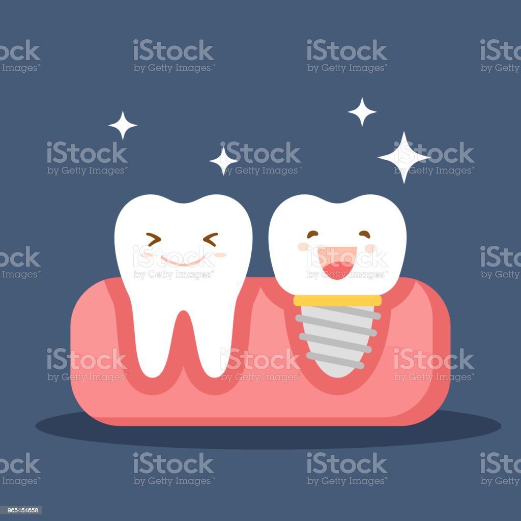 Dental implant and a normal tooth. Restoration in the oral cavity. Flat illustration on the theme of dentistry. Vector illustration isolated on blue background. dental implant and a normal tooth restoration in the oral cavity flat illustration on the theme of dentistry vector illustration isolated on blue background - stockowe grafiki wektorowe i więcej obrazów anatomia człowieka royalty-free