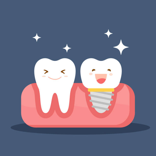 Dental implant and a normal tooth. Restoration in the oral cavity. Flat illustration on the theme of dentistry. Vector illustration isolated on blue background. Dental implant and a normal tooth. Restoration in the oral cavity. Flat illustration on the theme of dentistry. Vector illustration isolated on blue background human jaw bone stock illustrations