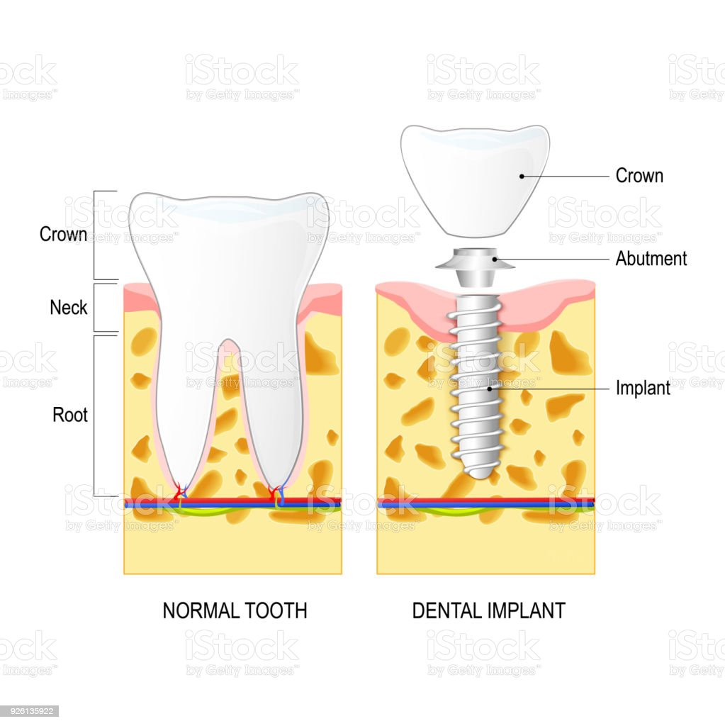 Dental Implant And Normal Tooth Stock Vector Art & More Images of ...