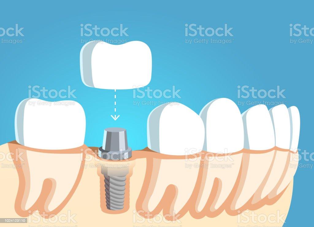 Ilustración de Implantes Dentales Y Prótesis Accesorio Modelo De ...