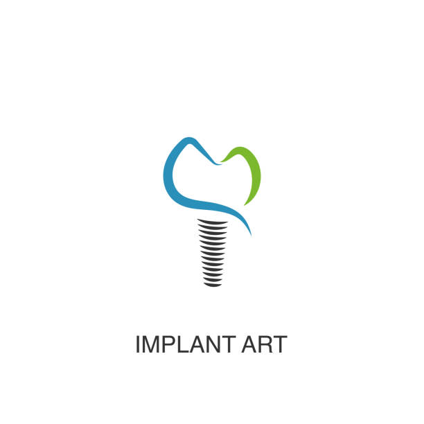 Best Dental Implant Illustrations, Royalty-Free Vector ...