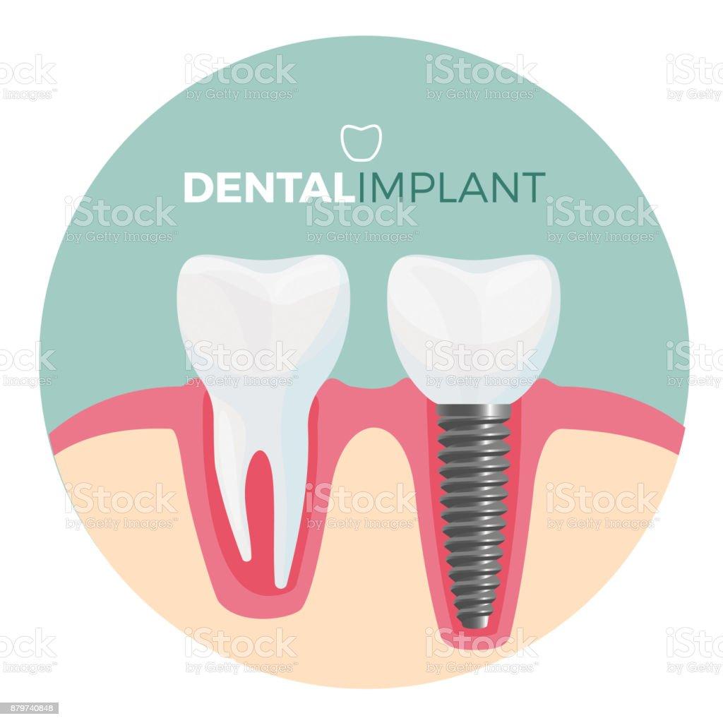 Dental implant placard with title on vector illustration vector art illustration