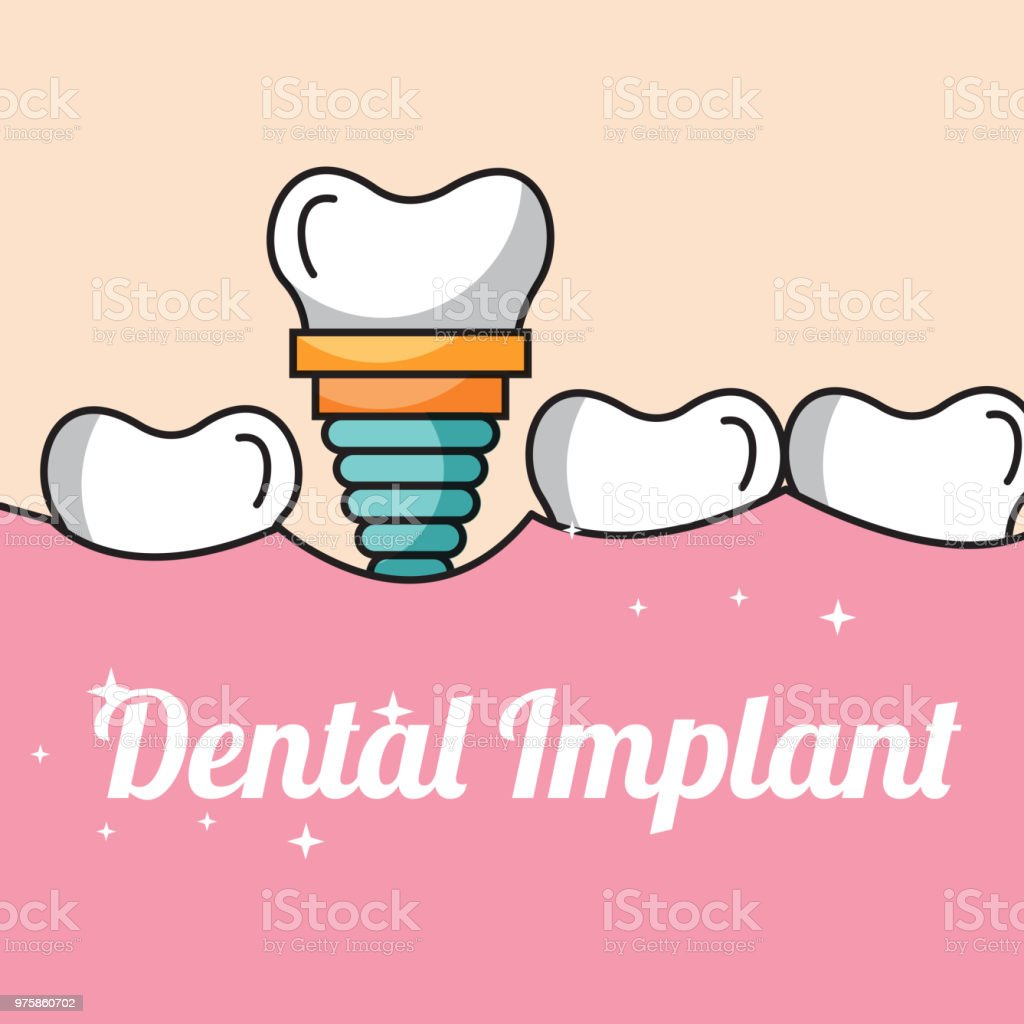 Dental Implant Tooth And Gum Inside Mouth Stock Vector Art More