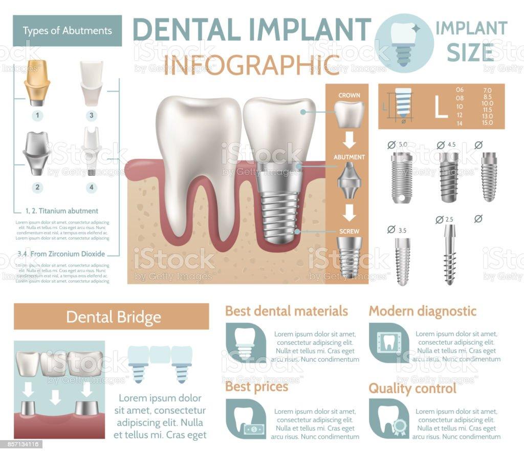 Dental implant tooth care medical center dentist clinic website infographic poster vector illustration vector art illustration