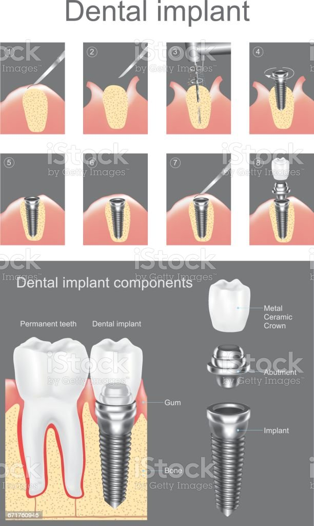 Dental implant. vector art illustration