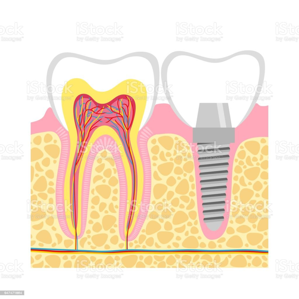 Dental Implant Vector Illustration Stock Vector Art & More Images of ...