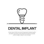 Dental Implant Vector Line Icon - Simple Thin Line Icon, Premium Quality Design Element