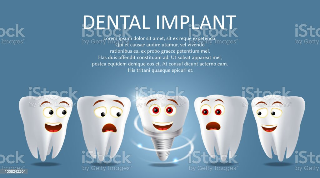 Dental Implant Vector Poster Or Banner Template Stock