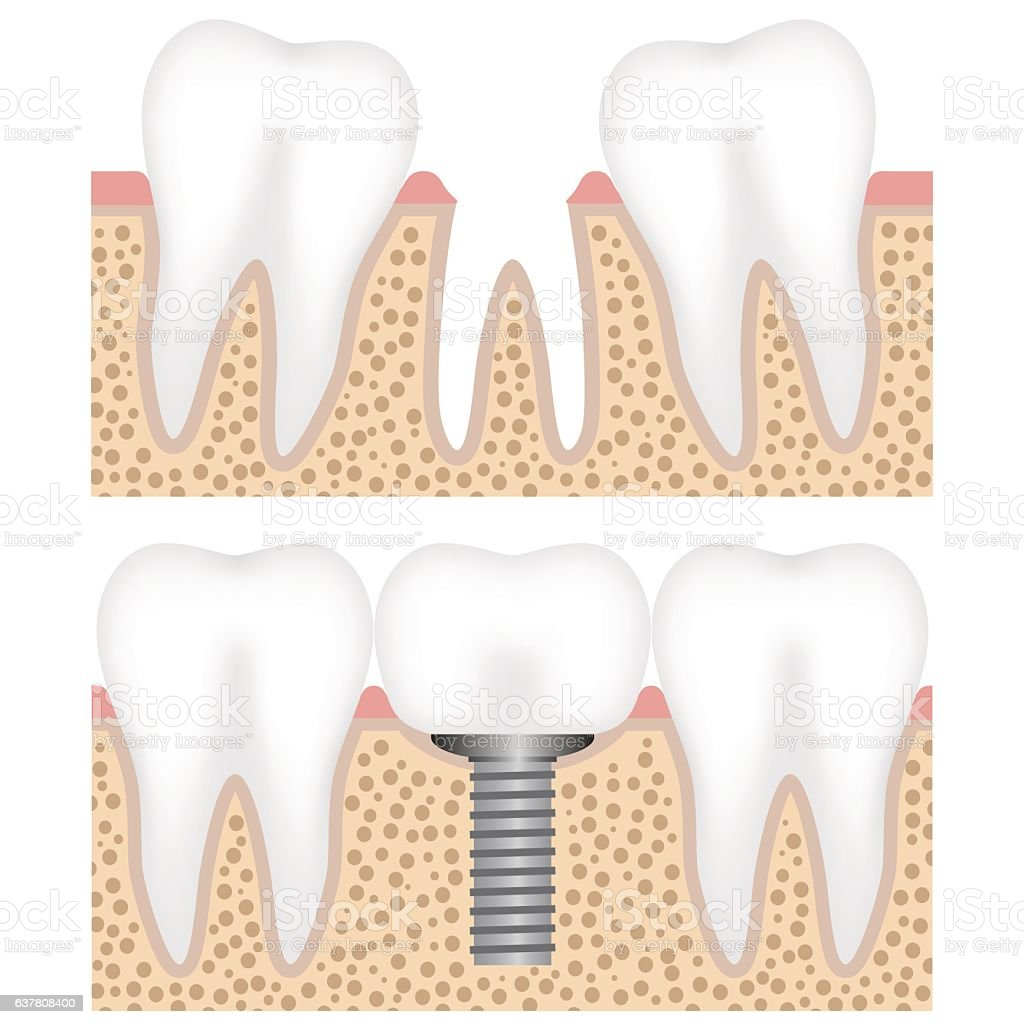 Dental Implant With Crown Stock Vector Art More Images Of Anatomy