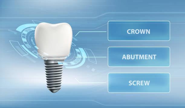 bildbanksillustrationer, clip art samt tecknat material och ikoner med tand implantat med skruv och krona. användar gränssnitt för teknik. - tandsten