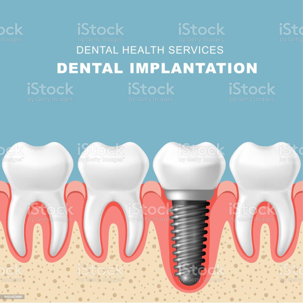 歯科インプラント植立 - インプラントと歯茎の歯の行 ベクターアートイラスト