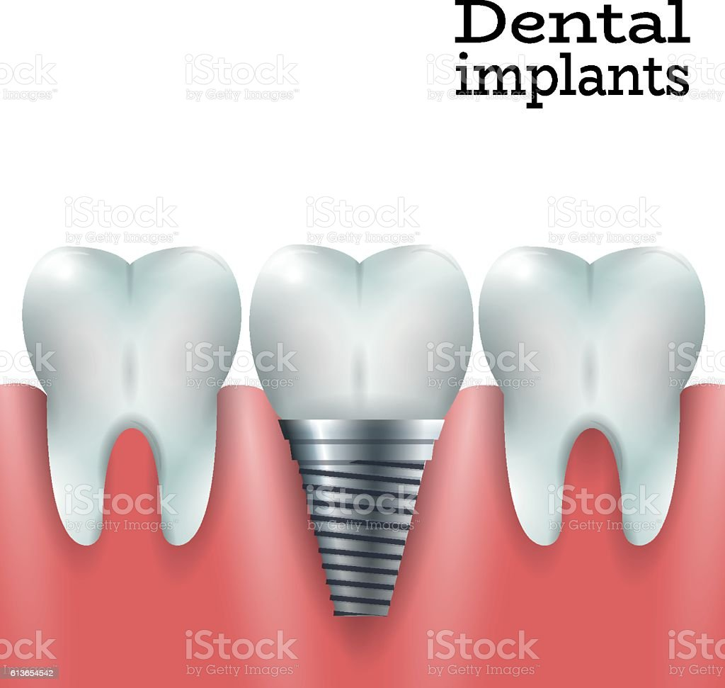 implants dentaires implants dentaires – cliparts vectoriels et plus d'images de blanchiment des dents libre de droits