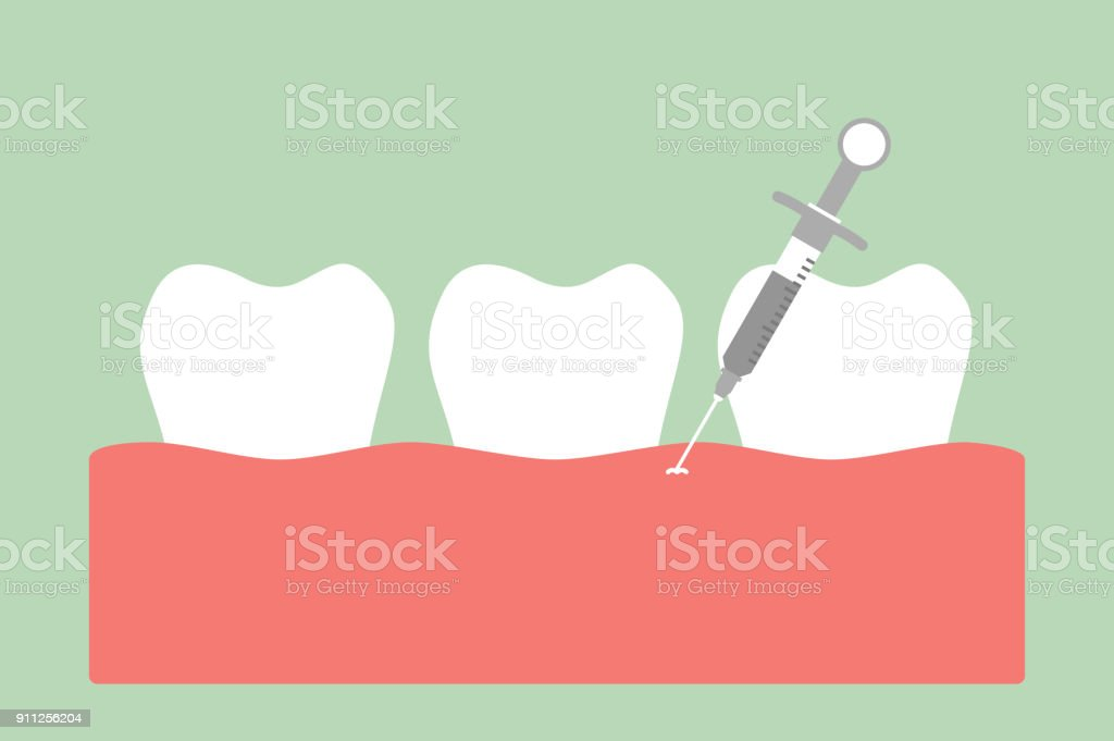 dental injection for tooth extraction, syringe and anesthetizing