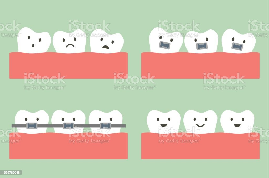 dental orthodontics treatment with teeth braces vector art illustration