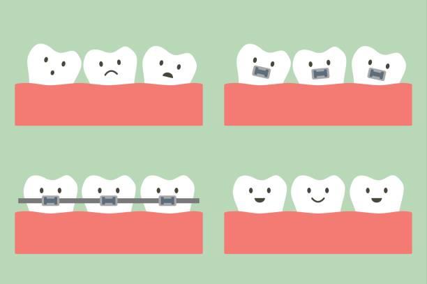 ilustraciones, imágenes clip art, dibujos animados e iconos de stock de tratamiento dental de ortodoncia con brackets de los dientes - ortodoncista