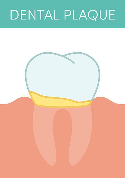 bildbanksillustrationer, clip art samt tecknat material och ikoner med dental plaque concept - tandsten