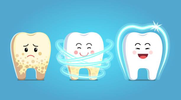 bildbanksillustrationer, clip art samt tecknat material och ikoner med plack borttagning förfarandet steg. molar tand karaktär blir behandling, blir friskt, glänsande & skyddade. tänder tandvård skydd, tandvård clipart. flat isolerade vektor - tandsten
