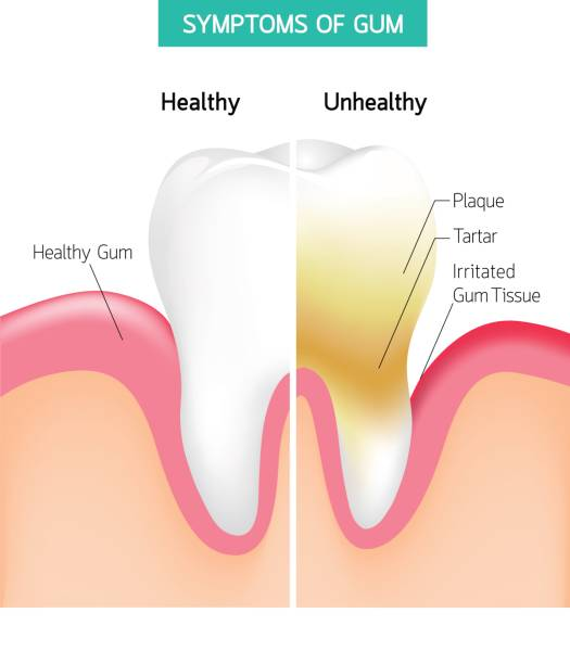 ilustrações de stock, clip art, desenhos animados e ícones de dental problem health care.  comparison of healthy and unhealthy tooth hygiene. - boca suja