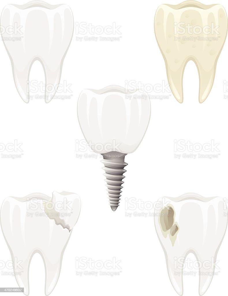 Dental problems vector art illustration