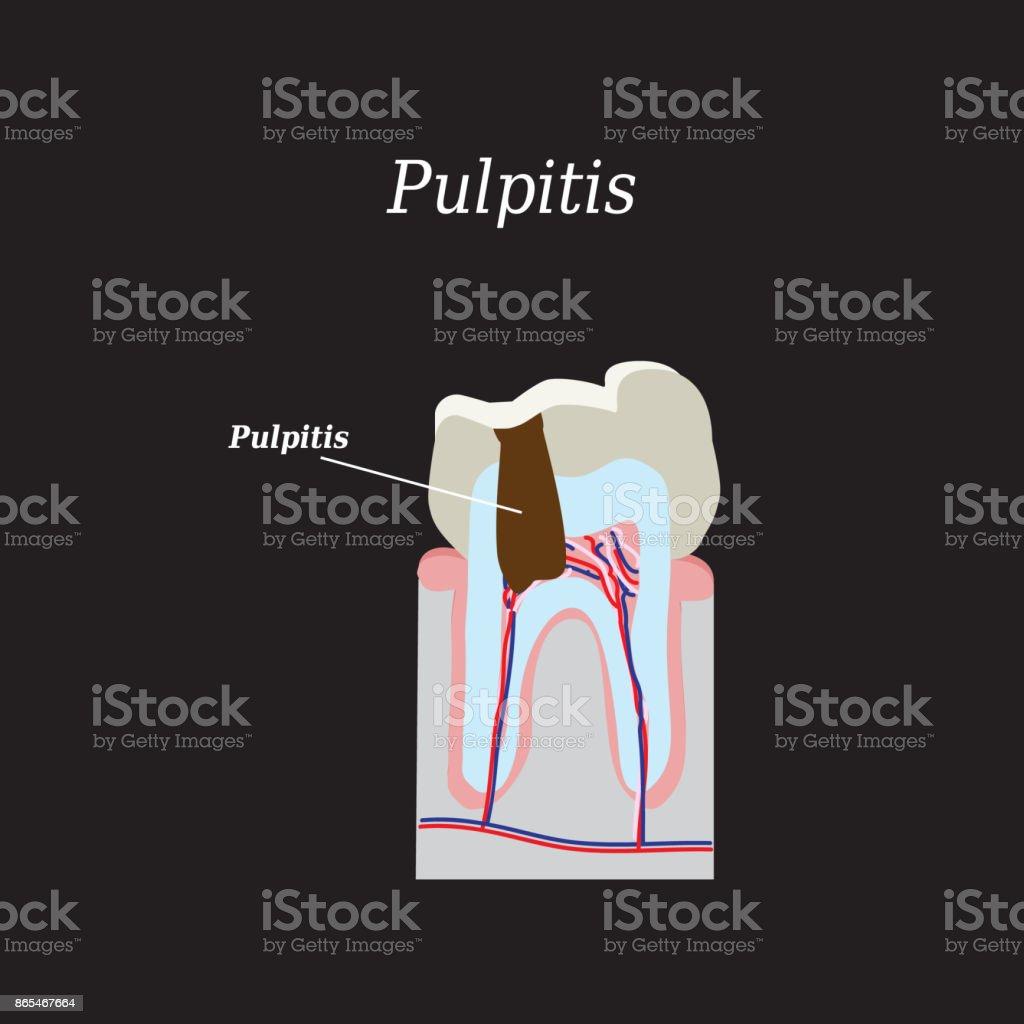 Pulpa Vektorillustration Auf Schwarzem Hintergrund Stock Vektor Art ...