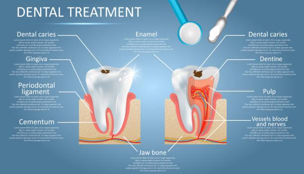 stockillustraties, clipart, cartoons en iconen met tandheelkundige behandeling vector diagram onderwijs medische anatomie poster infographics - dentine