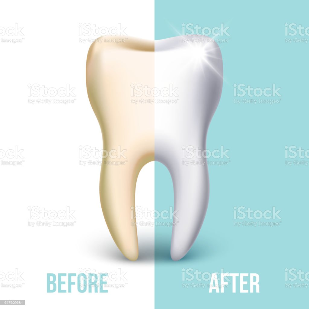 Dental Veneer Teeth Whitening Vector Concept Stock Vector Art & More ...