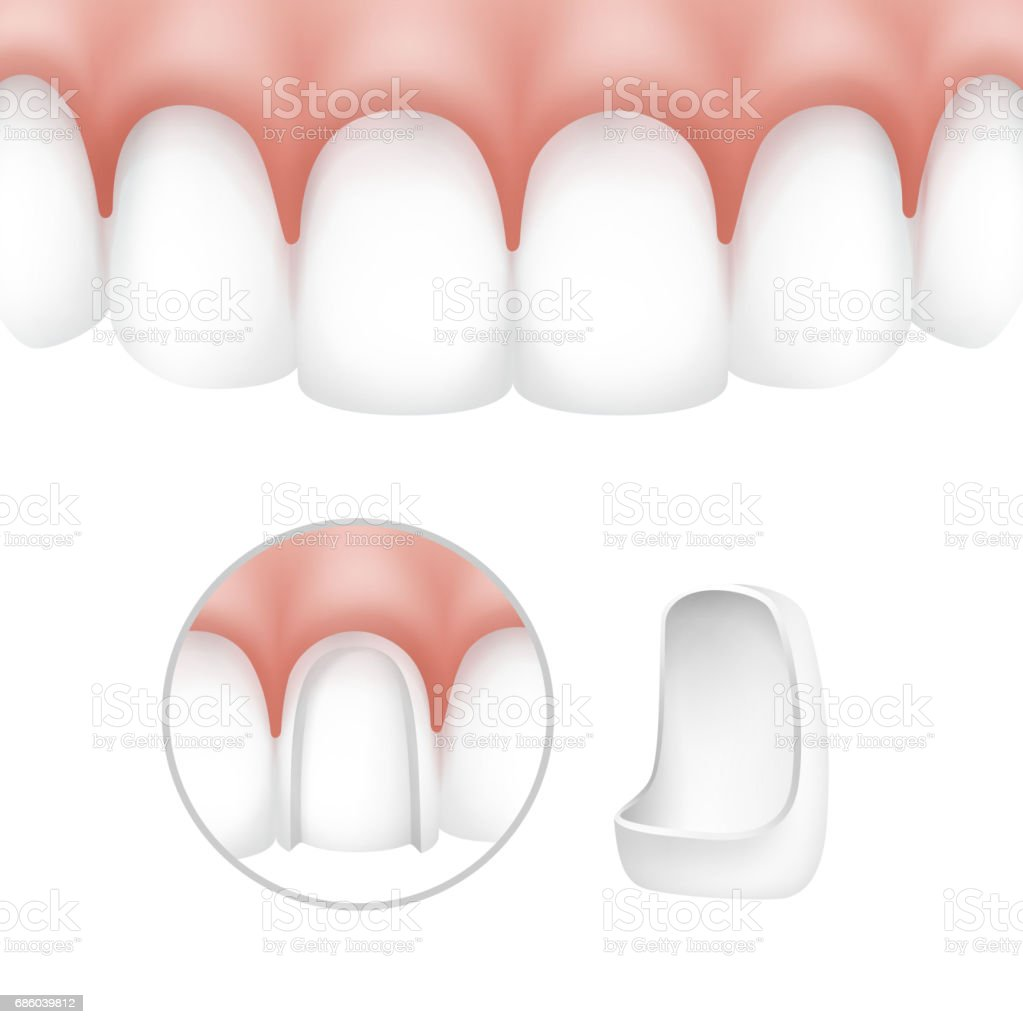 Ilustración de Carillas Dentales En Dientes Humanos y más banco de ...