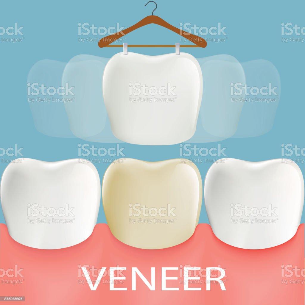 Dental veneers. Tooth anatomy. vector art illustration