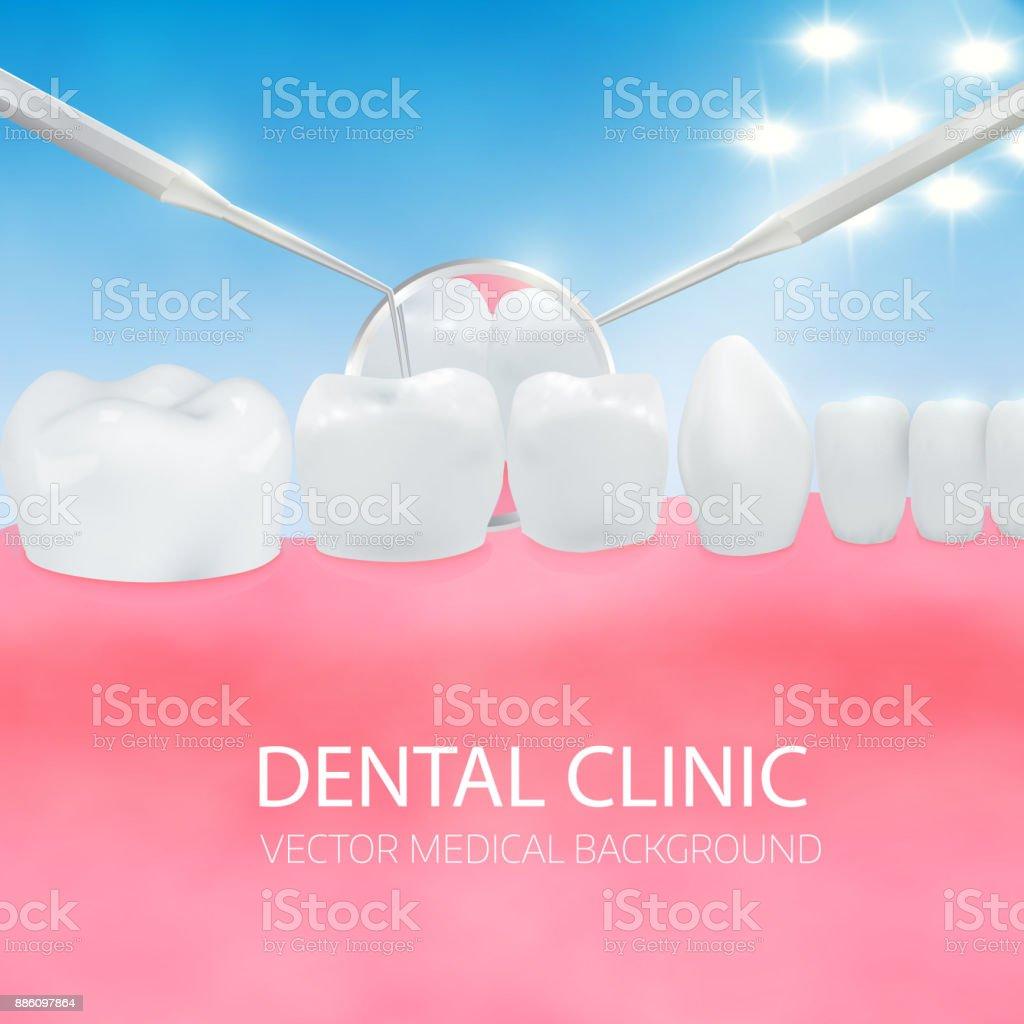 Diagnóstico De Los Dentistas Cavidad Bucal Con Dientes Blancos De ...
