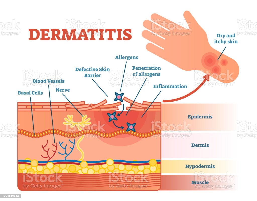 Dermatitis Flat Vector Illustration Diagram With Skin Layers And