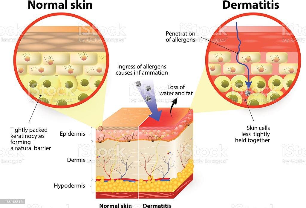 dermatitis or eczema vector art illustration