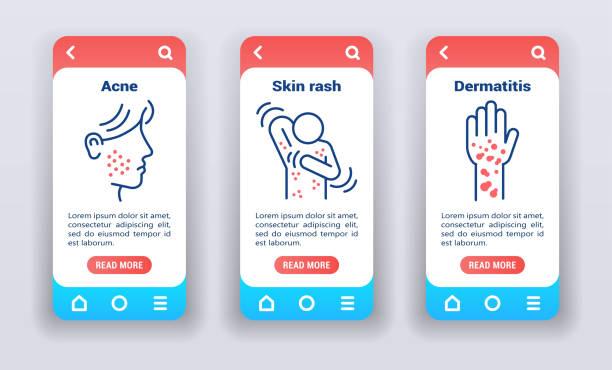 illustrazioni stock, clip art, cartoni animati e icone di tendenza di malattie dermatologiche sugli schermi di onboarding delle app mobili. modello di gui dell'interfaccia utente dell'esperienza utente - irritazione