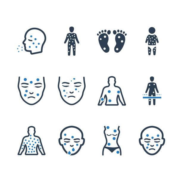 ilustraciones, imágenes clip art, dibujos animados e iconos de stock de iconos de dermatología - versión azul - dermatología