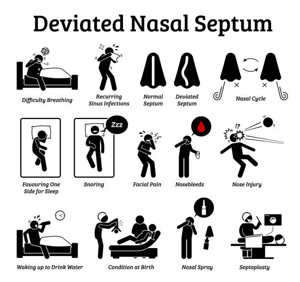 Deviated nasal septum icons. Illustrations depict signs and symptoms of nose problem. Difficulty breathing, sinus infection, snoring, and facial pain. Treatments are nasal spray and septoplasty. septum stock illustrations