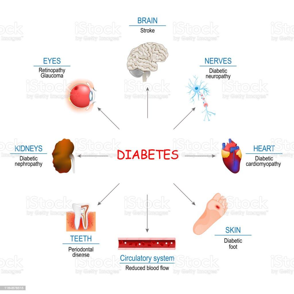 afectaciones de la diabetes