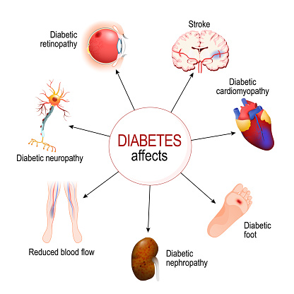 Diabetes Affects. Complications of diabetes mellitus