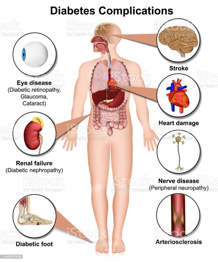 miringotomia complicaciones de diabetes