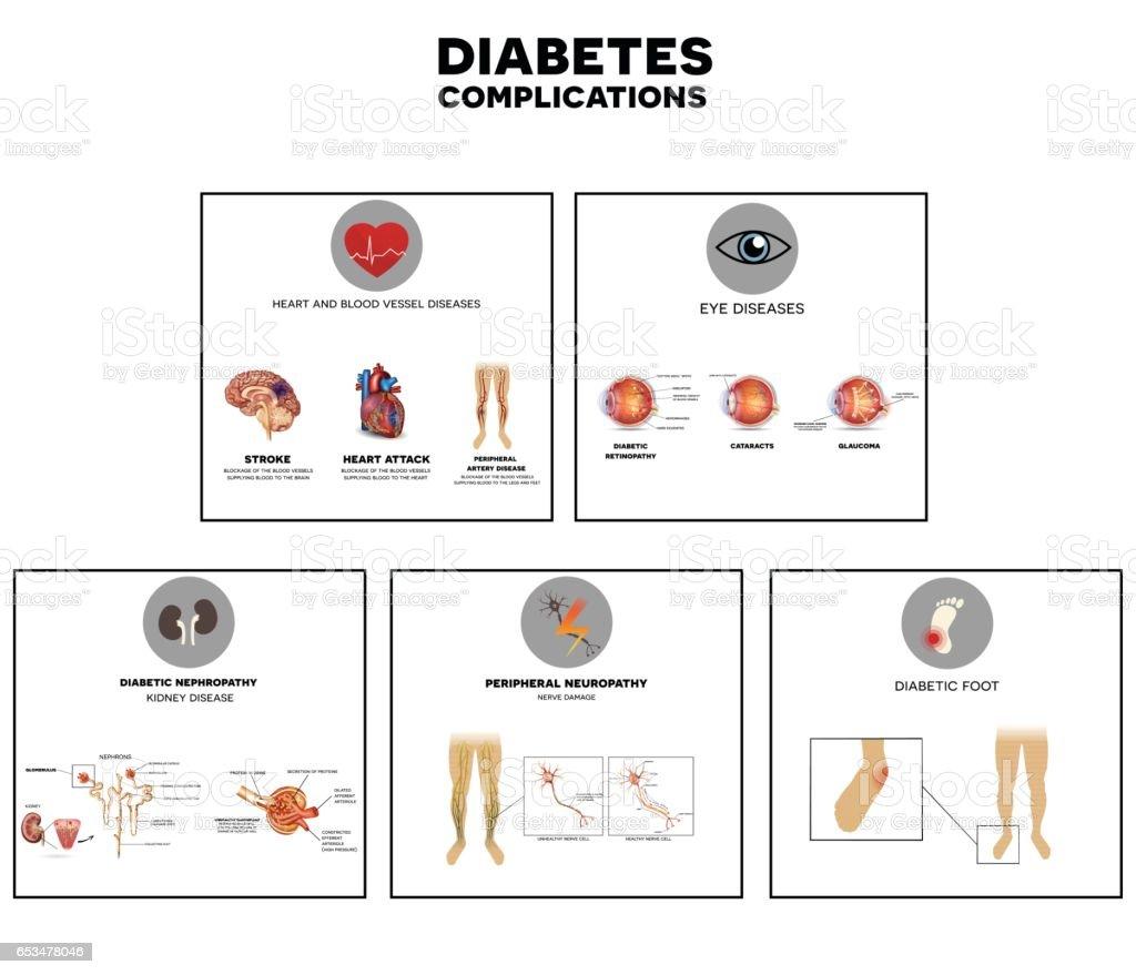 Diabetes complications vector art illustration