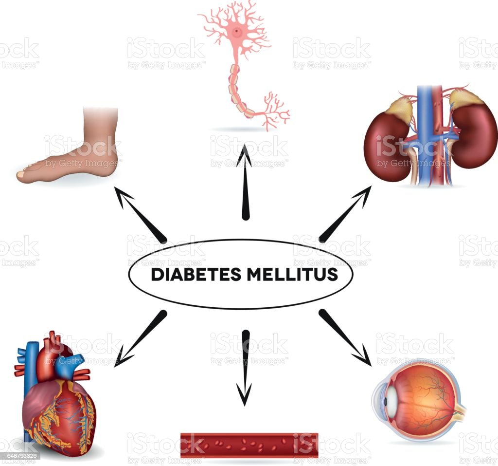 Ilustración de Órganos Afectados De Diabetes Mellitus y más banco de ...