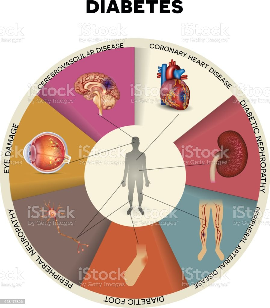 Diabetes Mellitus Affected Organs Stock Vector Art & More Images of ...