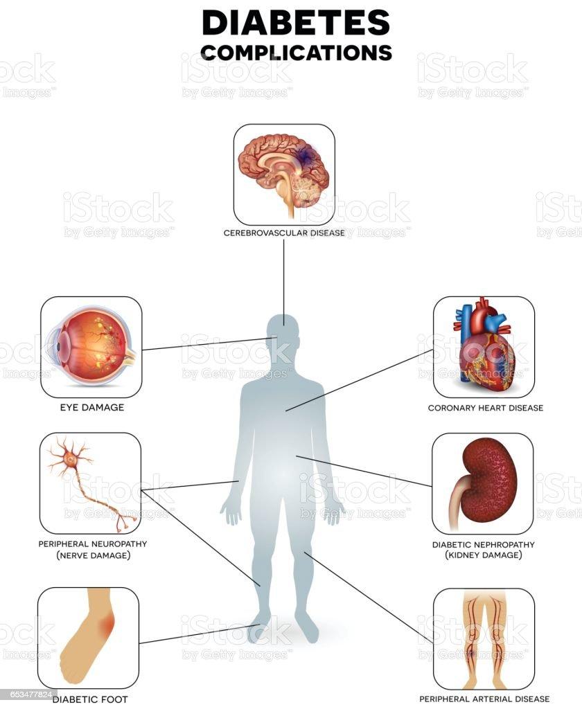Ilustração de Diabetes Mellitus Affected Organs e mais banco de ...
