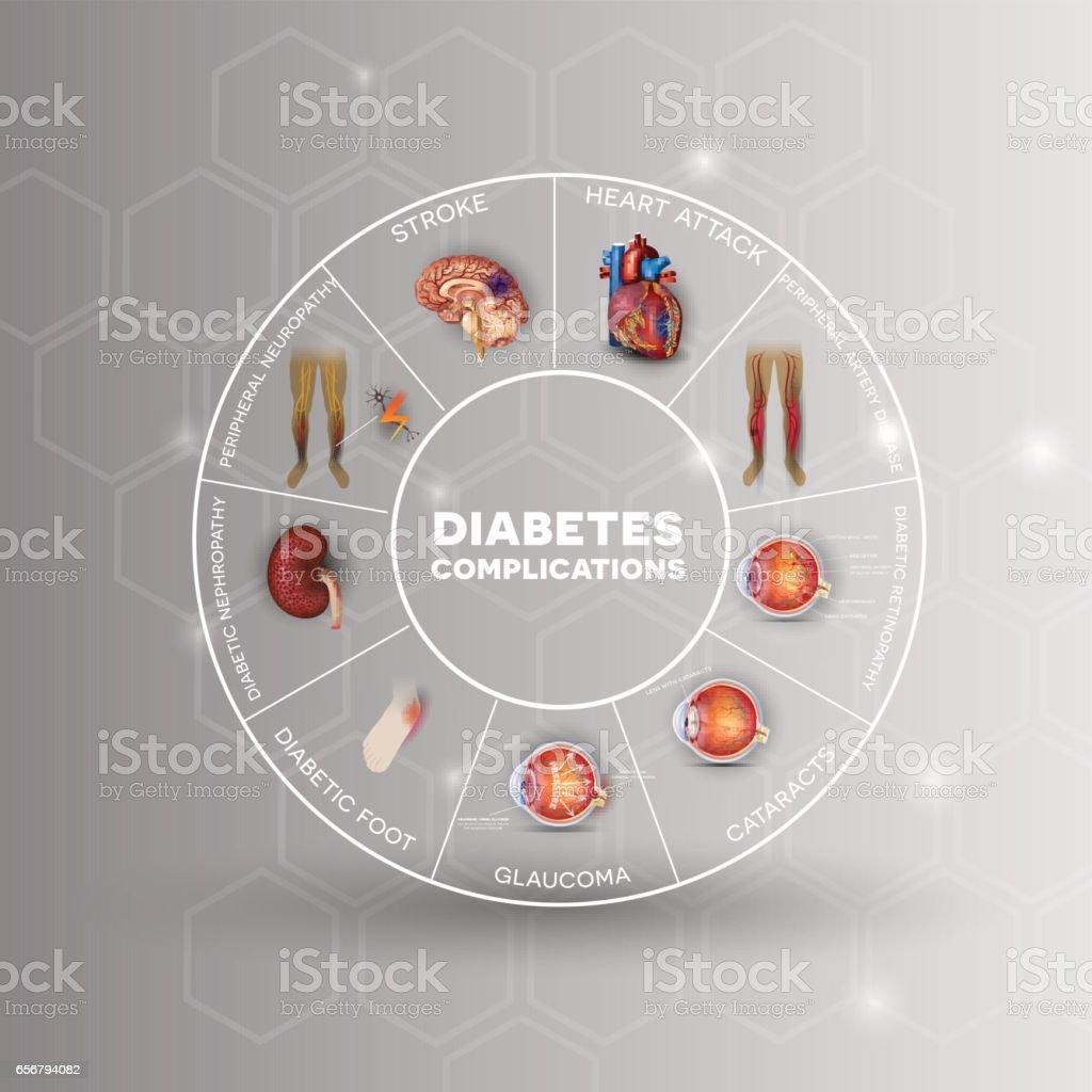 Diabetes Mellitus Affected Organs - Arte vectorial de stock y más ...