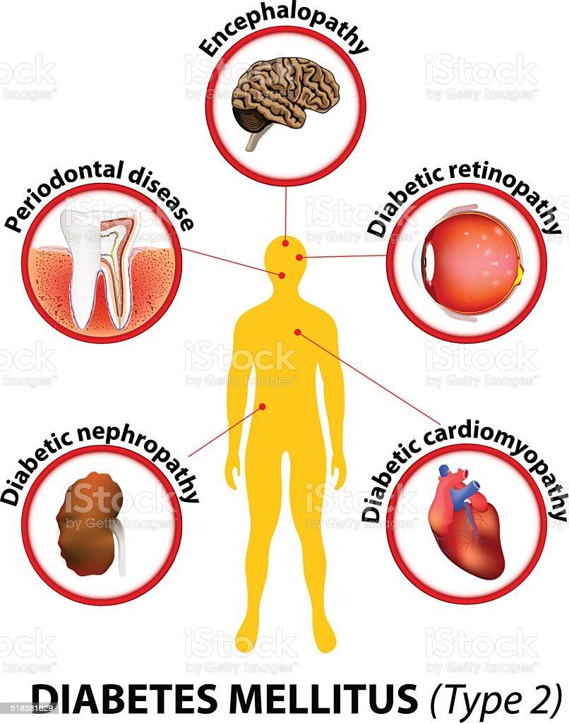 Ilustración de Diabetes Mellitus Complicaciones A Largo Plazo y más ...
