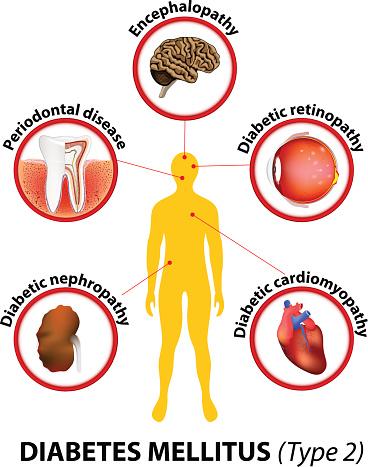 Diabetes mellitus: Komplikationen - via medici: leichter lernen - mehr verstehen