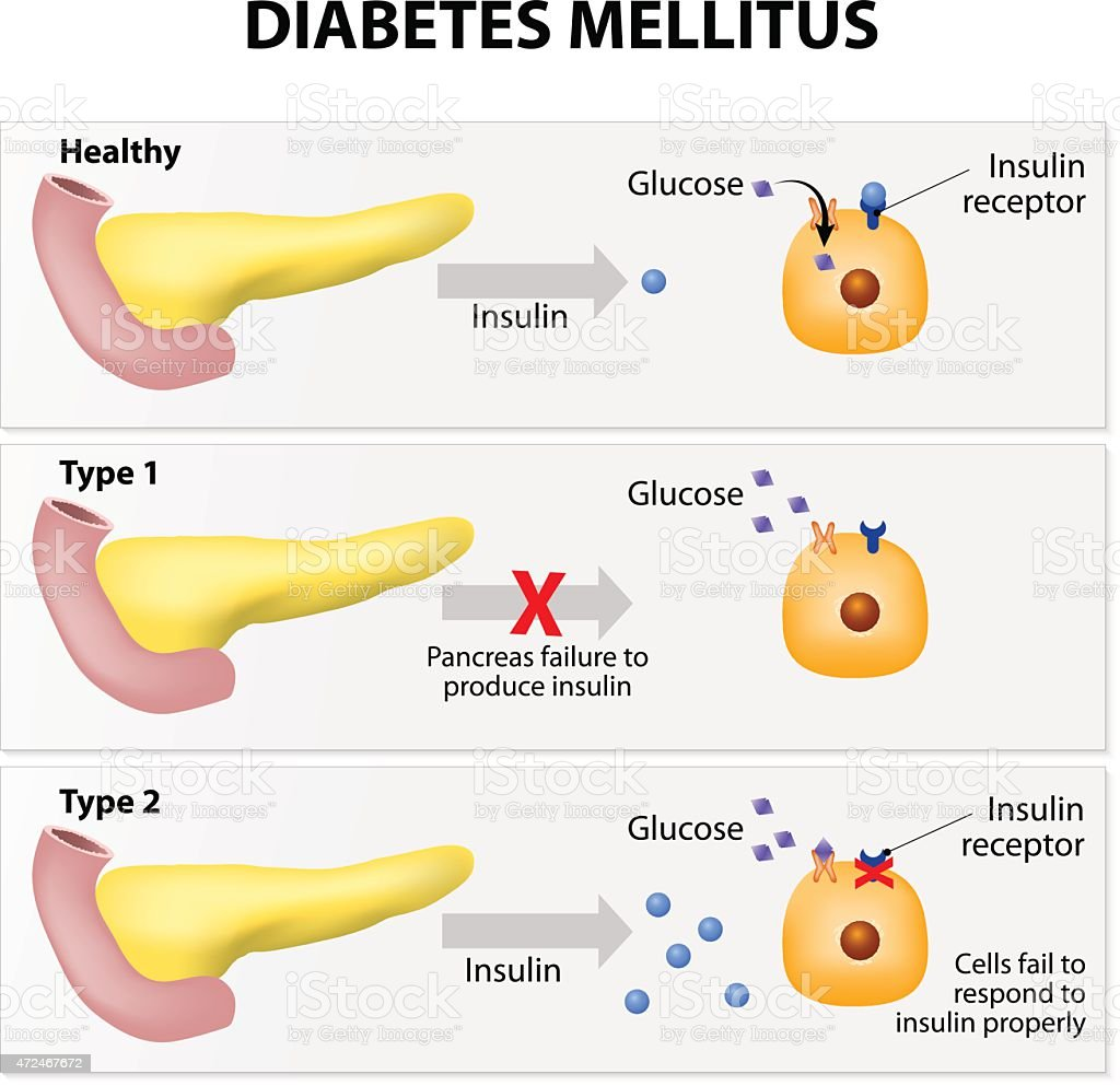 Diabetes Mellitus Stock Vector Art & More Images of 2015