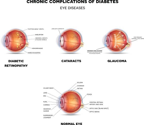 diabetic eye diseases - глазное яблоко stock illustrations